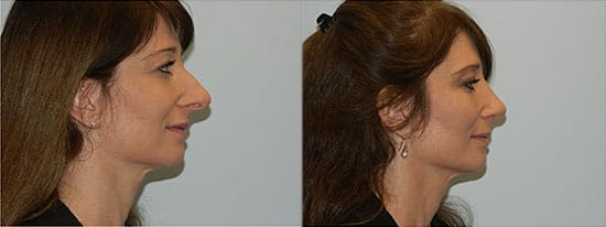 Plastic Surgery Philadelphia