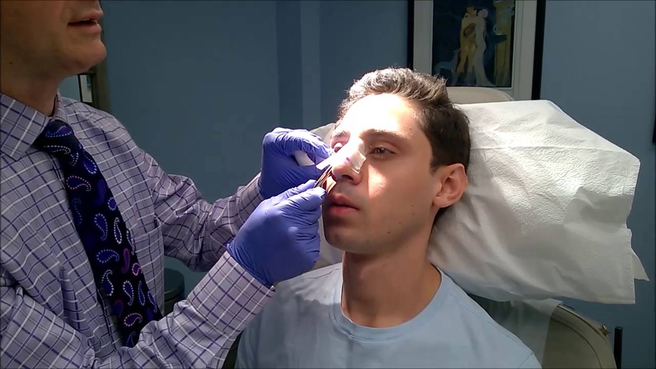 Facial Surgery Videos, Aesthetic Facial Plastic Surgery Center