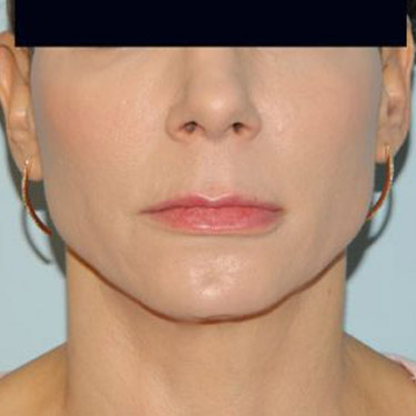 Lip Augmentation Philadelphia